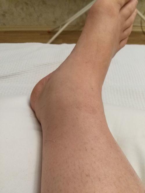 Разрыв связок, вернее надрыв трех связок правый голеностоп, 23 августа. Отекает нога до колена, за ночь проходит, и так уже  1, 5 недели. До этого лежала, на ногу ее наступала. Даже в покое, если нога вниз возникает отек - фото №2