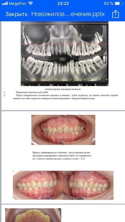 зубы мудрости - фото №1
