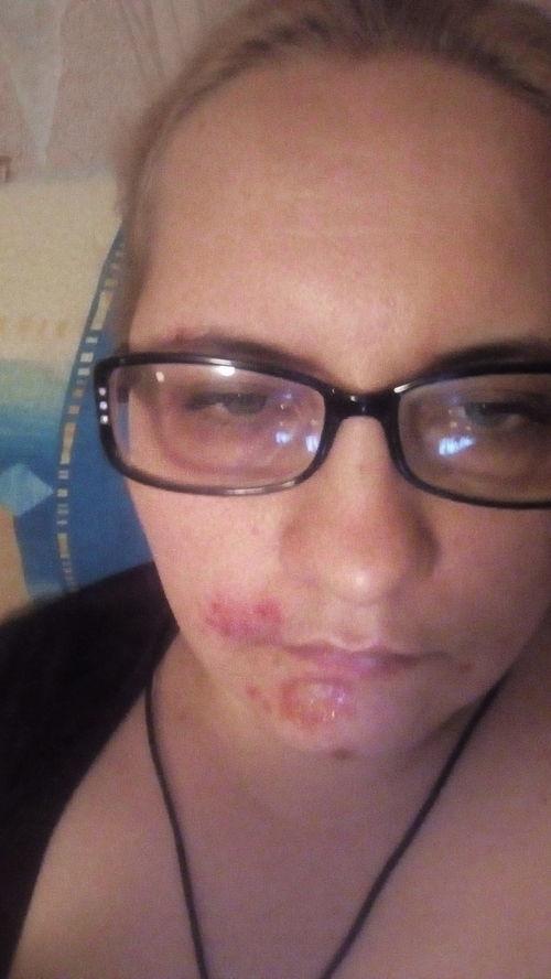 Болячки на лице - фото №1