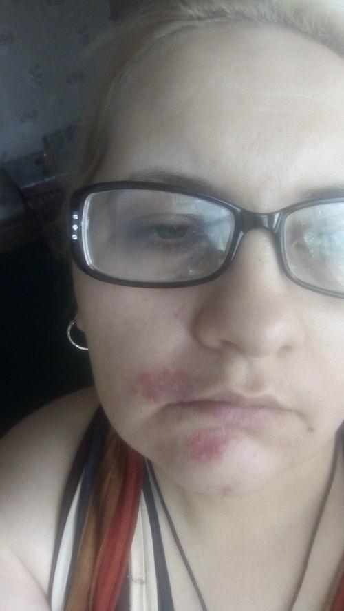 Болячки на лице - фото №2