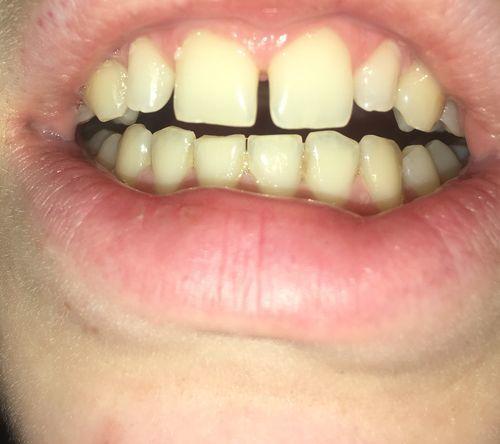 Хочу убрать щель между зубами - фото №3