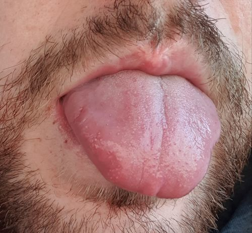 Сыпь на языке - фото №1