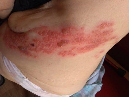 Аллергия на коже, на боку - фото №1