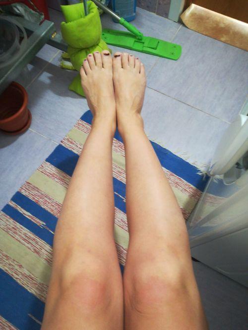 Операция на голени(круропластика) для исправления ложной кривизны - фото №1
