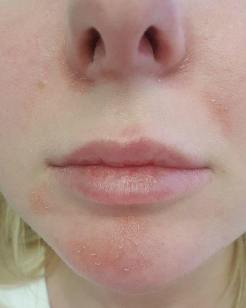 Постоянное шелушение кожи возле носа и на подбородке - фото №1