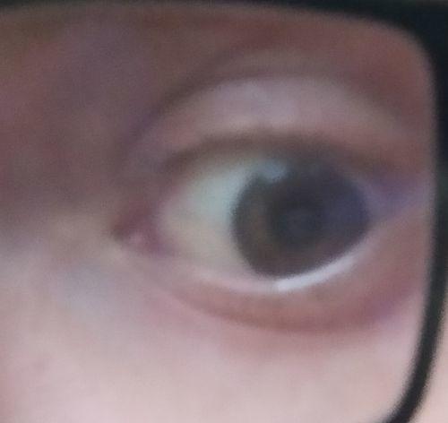 Покраснение глаз - фото №1