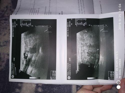 Восполение около ушной слюной железы - фото №2