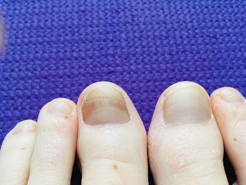 изменение цвета на большом пальце ноги - фото №1