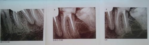 Можно ли сохранить зуб? - фото №1