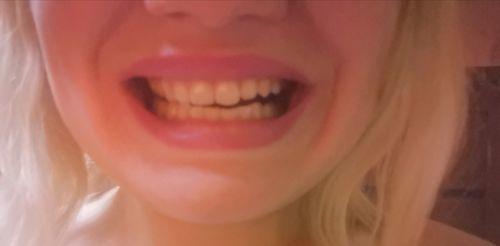 Неравномерно расположены челюсти - фото №1