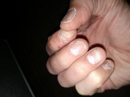 Проблемы с ногтями - фото №1
