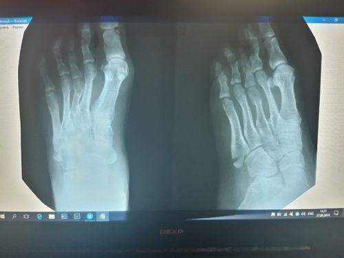 Закрытый перелом основания 5 плюсневой кости со смещением - фото №1