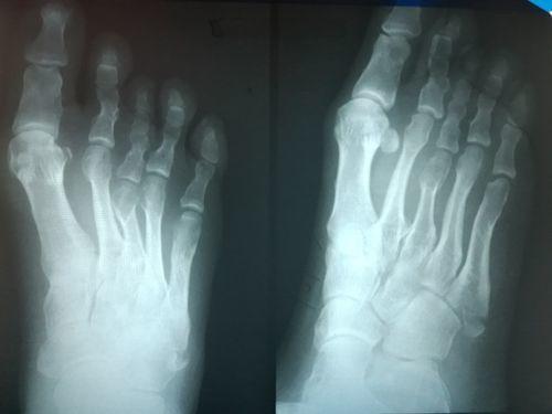 Закрытый перелом основания 5 плюсневой кости со смещением - фото №2