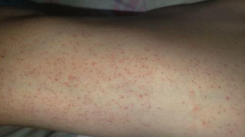 Красные точки на ногах у девочки - фото №1
