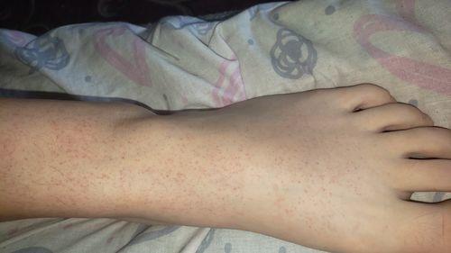Красные точки на ногах у девочки - фото №2