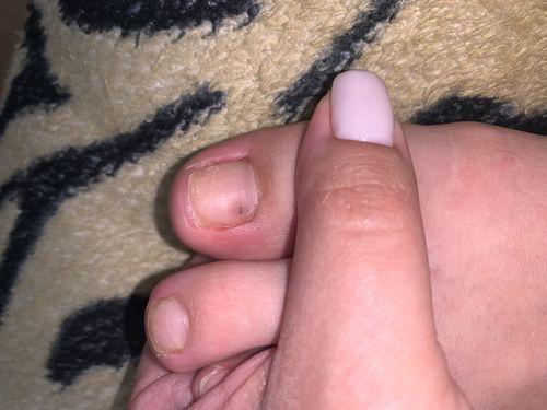 Здравствуйте! Неделю назад на ногтевой пластине большого пальца появилась чёрная точка, в размерах она не увеличивается, не болит, на других пальцах такого нет. Подскажите, пожалуйста, что это может быть? Спасибо! - фото №1