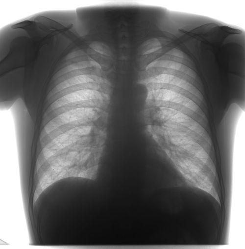 Вопрос о туберкулезе - фото №1
