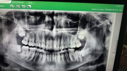 Удаление зубов мудрости - надо ли? - фото №1