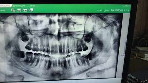 Удаление зубов мудрости - надо ли? - фото №2