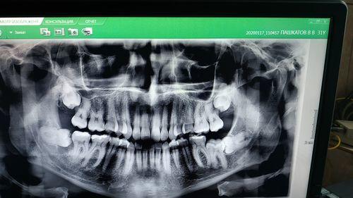 Удаление зубов мудрости - надо ли? - фото №3