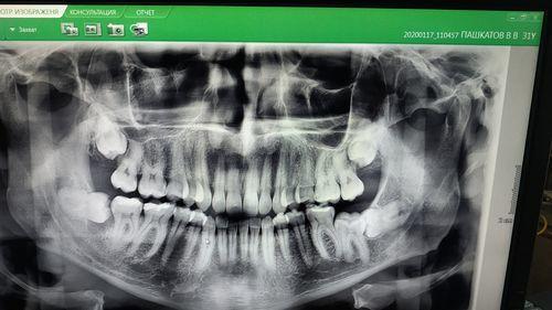 Удаление зубов мудрости - надо ли? - фото №4