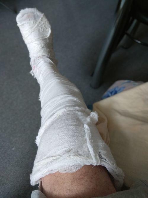 Получил травму-перелом надколенника правой ноги - фото №1