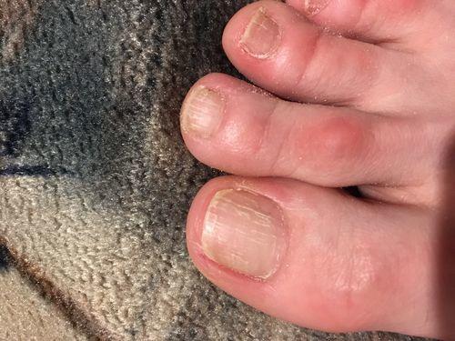 Появились вертикальные борозды на ногтях - фото №1