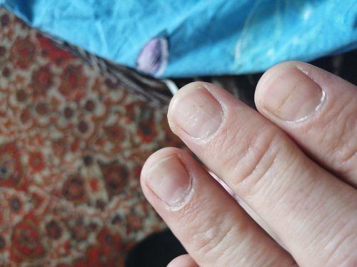 Здравствуйте уменя на ноктях поевились мятинки - фото №1