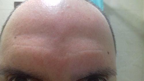 сыпь на лице - фото №2