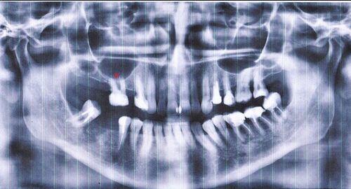 нужен совет стоматолога/хирурга/имплантолога - фото №1