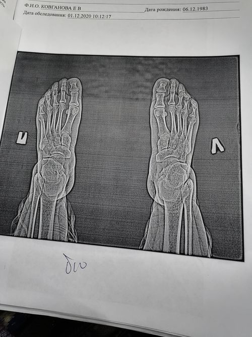 Можно ли избавиться от краевых костных разрастания таранной и ладьевидной костей - фото №1