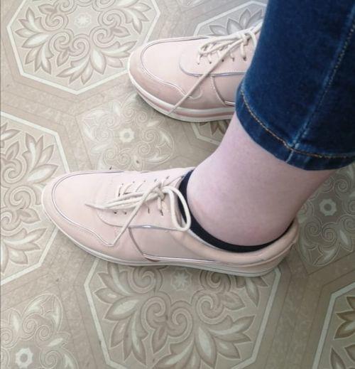 Отеки на ногах - фото №1