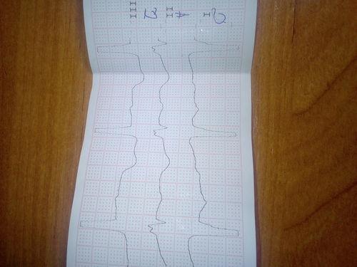 Описание ЭКГ - фото №1