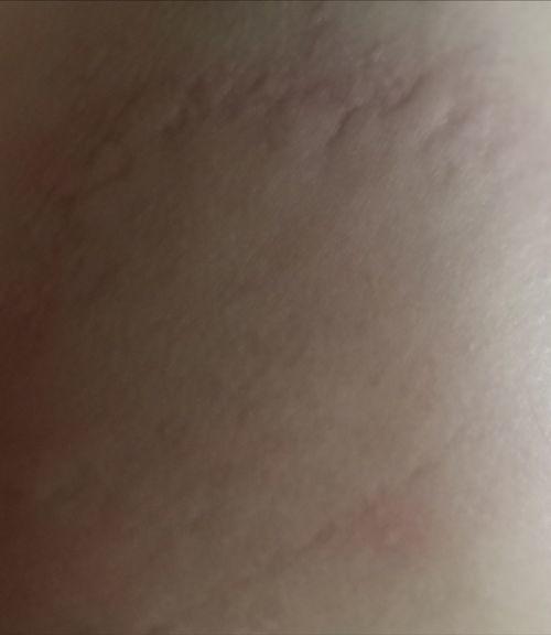 Температура, а потом сильная кожная аллергия - фото №1