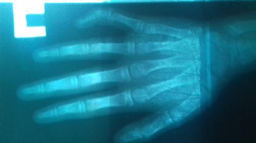 Где сделать операцию по исправлению клинодактилии - фото №4