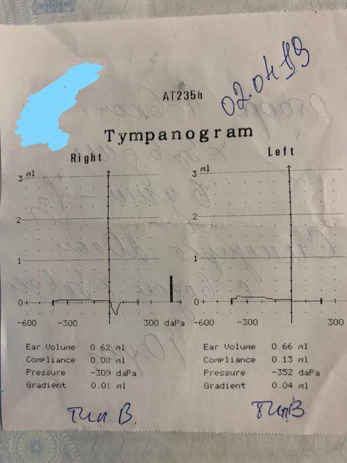Тубоотит, аденоиды - фото №1