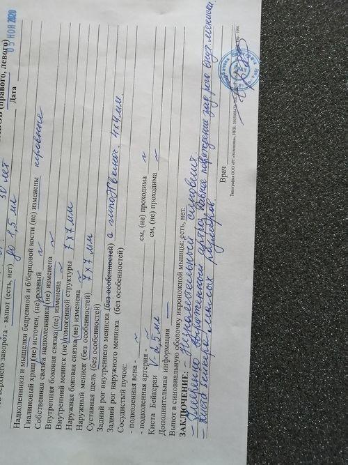 Артроз, Киста Бейкера, повреждение миниска - фото №1