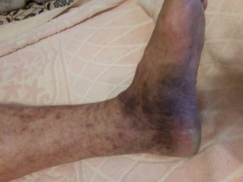 Есть пациент с тромбофлебитом. - фото №1