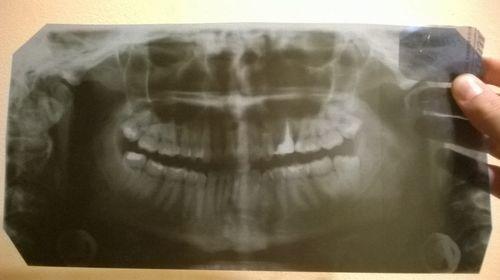 Можно ли нарастить зуб на оставшийся кусочек корня в десне? - фото №1