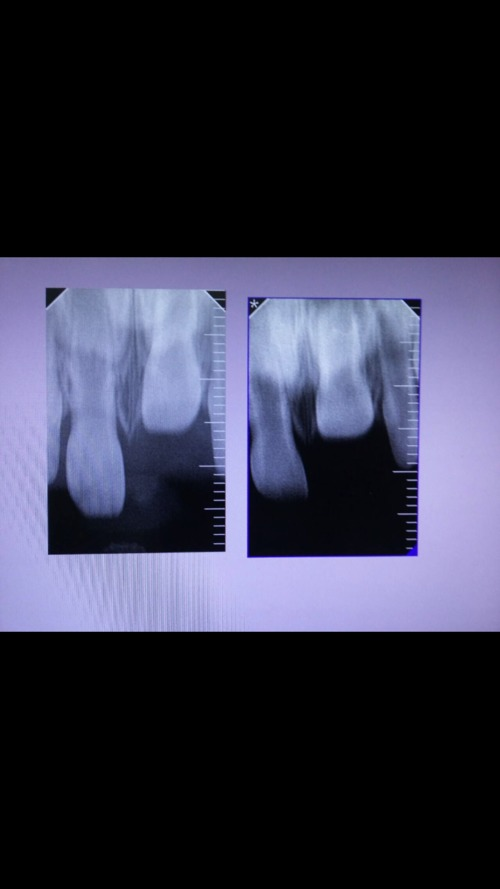 Вколоченный вывих молочного зуба - фото №1