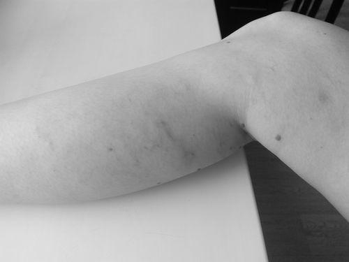 Варикоз нижних конечностей - фото №1