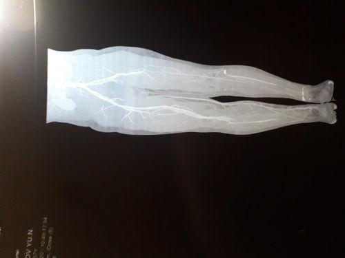 У моего мужа облитирующий атеросклероз нижних конечностей, окклюзия ПБА, ПкА, ЗББА, ПББА слева, ЗББА справа, ХИНК 1V. трофическая язва 5 пальца стопы. Заключительный диагноз: АРТЕРИИТ НЕУТОЧНЕННЫЙ. - фото №1