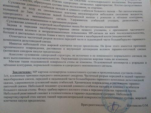 Травма голеностопного суставп - фото №2
