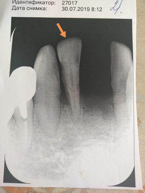 Нужно ли удалять зубы при пародонтите - фото №1