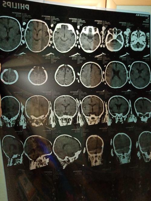 Посмотрите пожалуйста результат УЗИ головного мозга от 22.10.2019, и кт от 23.10.2019 у моего сыночка, ему 4 месяца. - фото №1