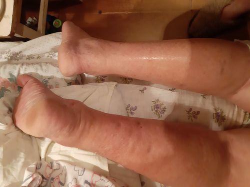Отек и покраснение ног - фото №1
