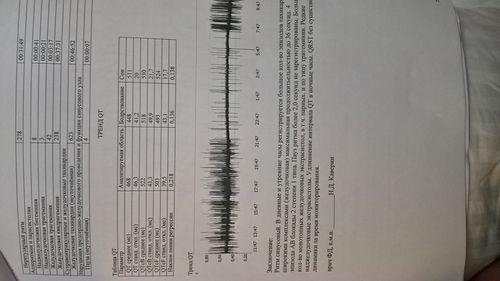 наджелудочковая тахикардия и AV блокада 2 степени 1 типа - фото №1