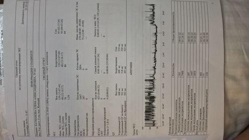 наджелудочковая тахикардия и AV блокада 2 степени 1 типа - фото №2