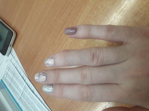 Перелом пальца - фото №1