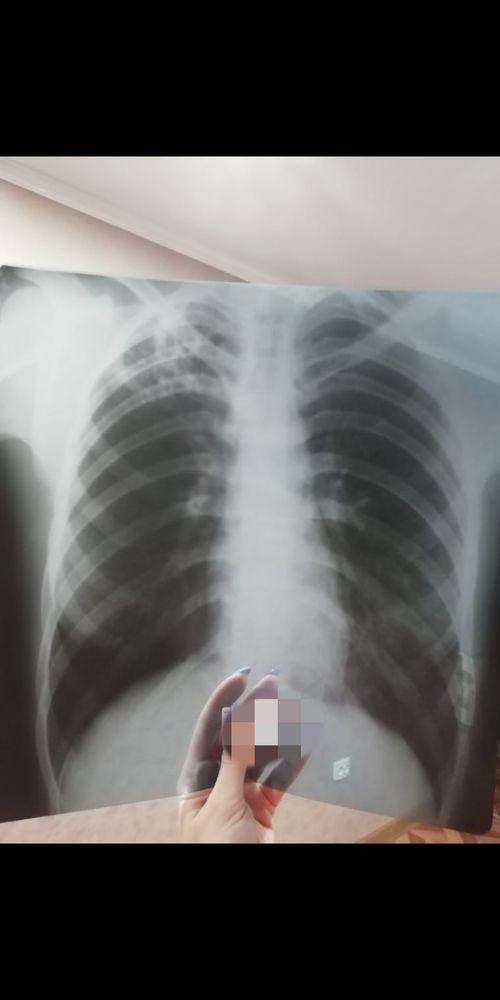 Насколько запущенный туберкулёз? - фото №1